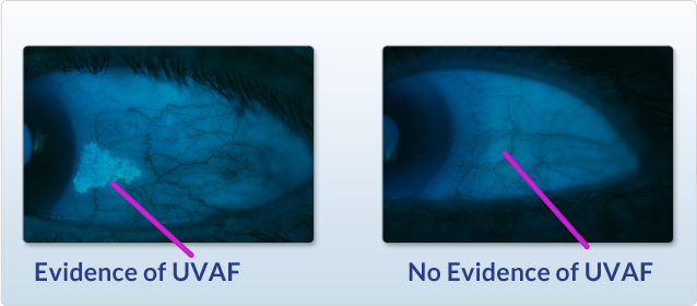 A comparison photo an eye with evidence of UVAF and one with no evidence of UVAF.
