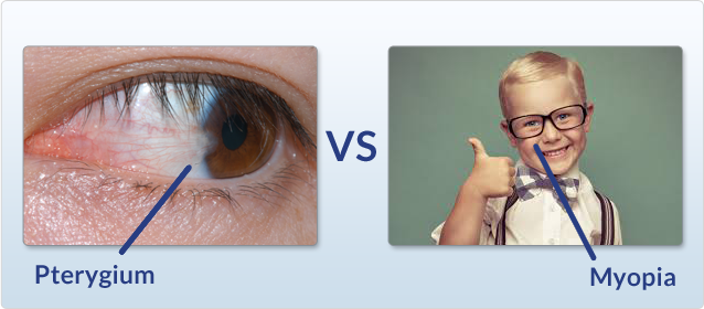 A photo of an eye with Pterygium vs Myopia.